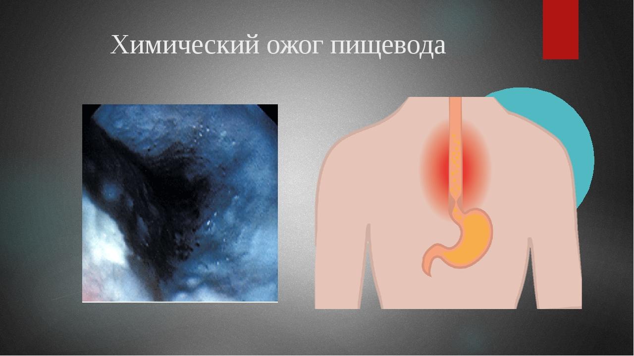 Химический ожог пищевода
