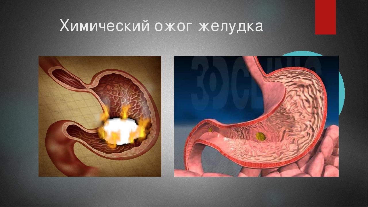 Химический ожог желудка