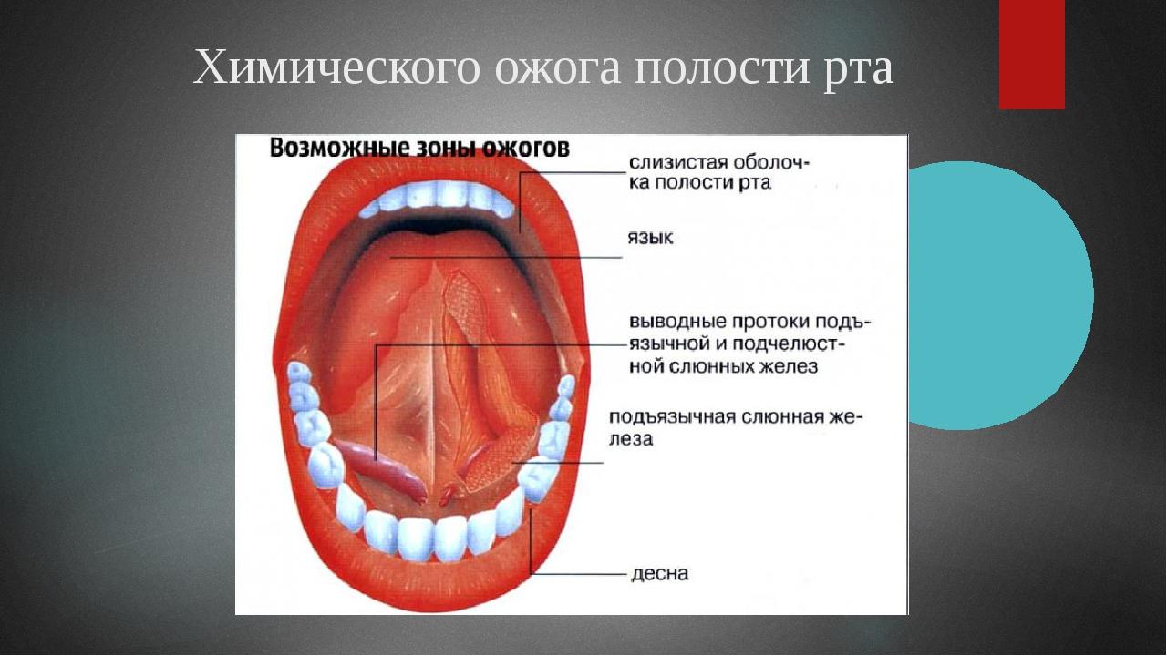 Химического ожога полости рта