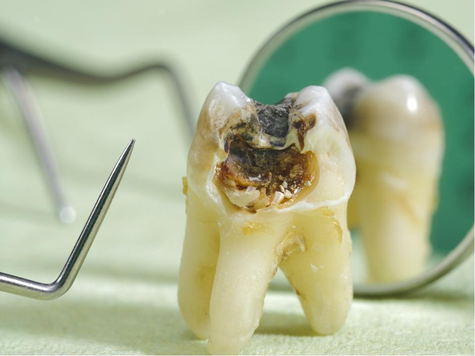один картинка вырывают зуб зал