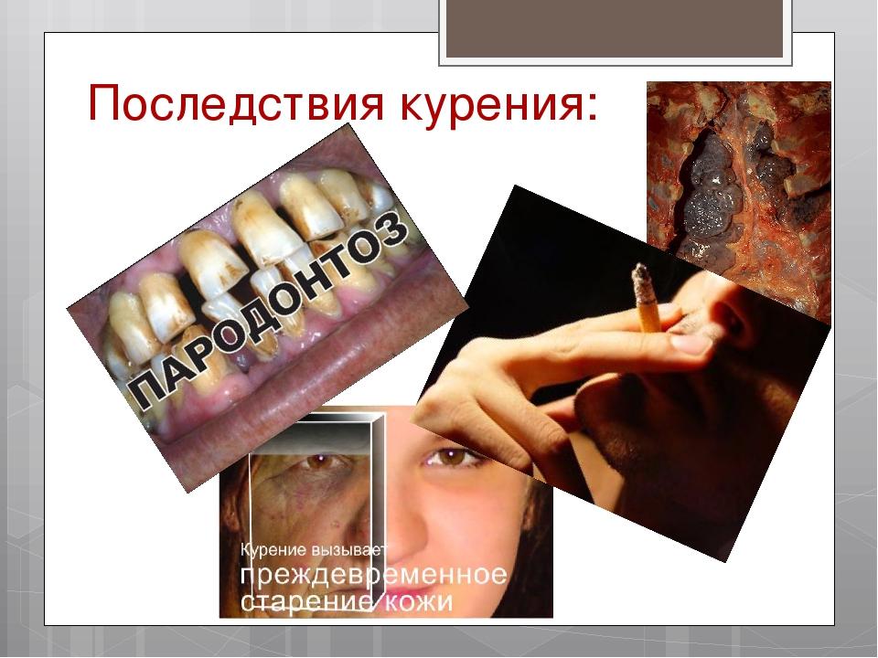 Последствия курения: