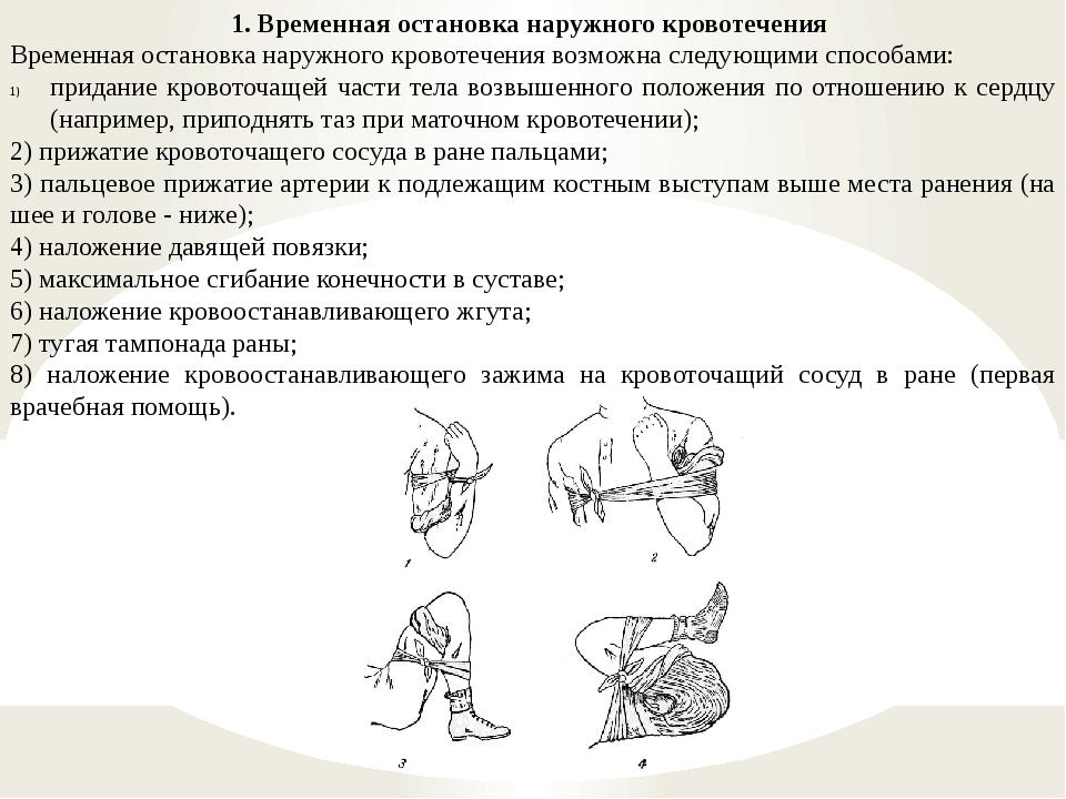 1. Временная остановка наружного кровотечения Временная остановка наружного к...