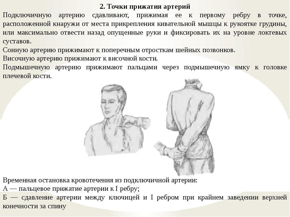 2. Точки прижатия артерий Подключичную артерию сдавливают, прижимая ее к перв...