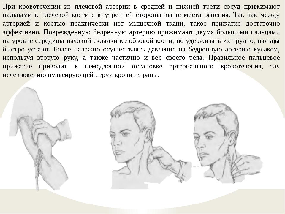 При кровотечении из плечевой артерии в средней и нижней трети сосуд прижимают...