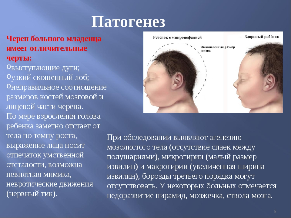 * Патогенез Череп больного младенца имеет отличительные черты: выступающие ду...
