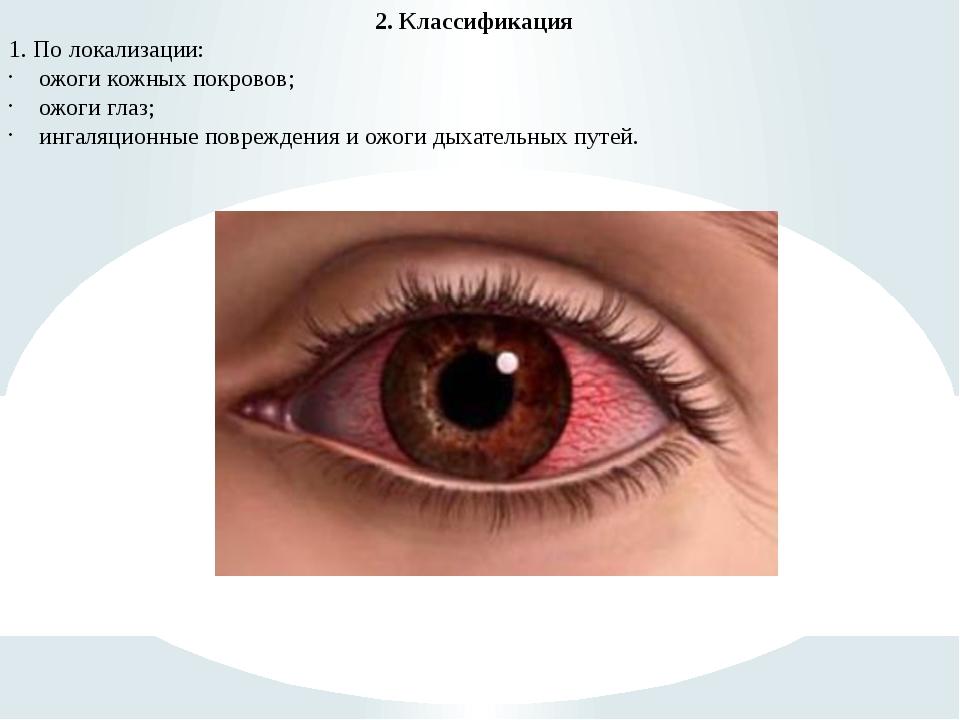 2. Классификация 1. По локализации: ожоги кожных покровов; ожоги глаз; ингаля...
