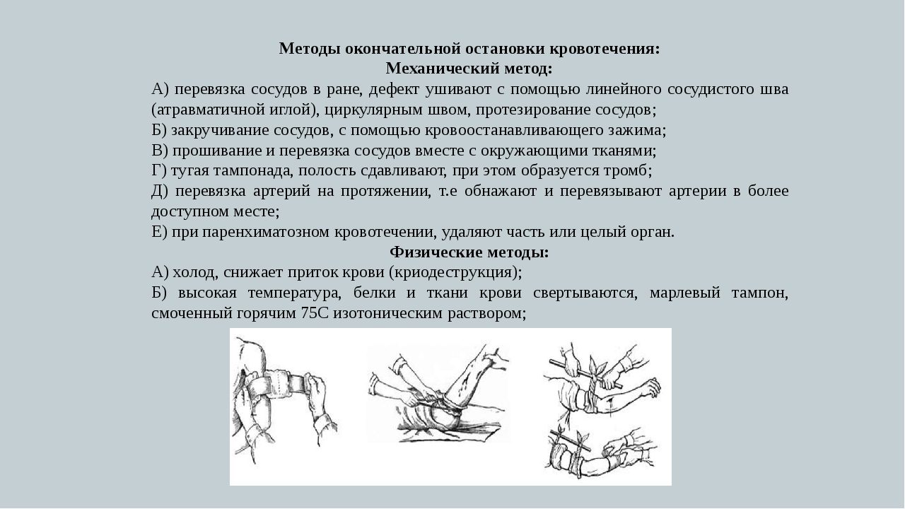 Методы окончательной остановки кровотечения: Механический метод: А) перевязка...