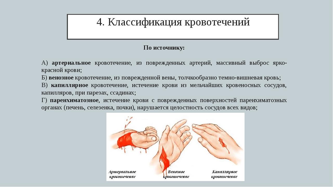 4. Классификация кровотечений По источнику: А) артериальное кровотечение, из...