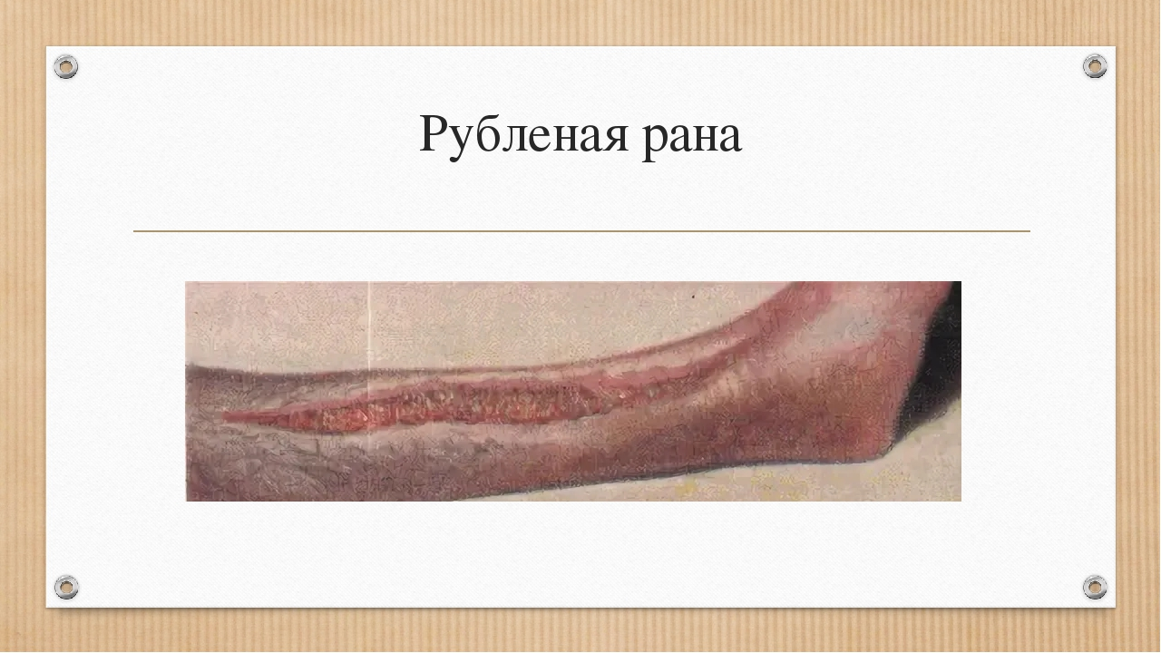 Рубленая рана