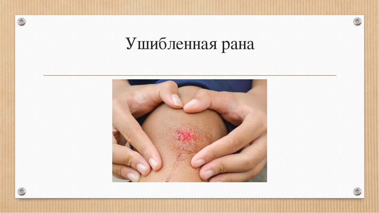 Ушибленная рана