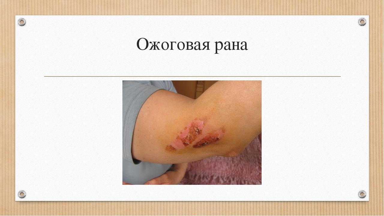 Ожоговая рана
