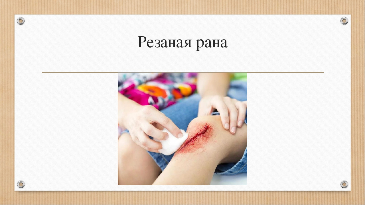 Резаная рана