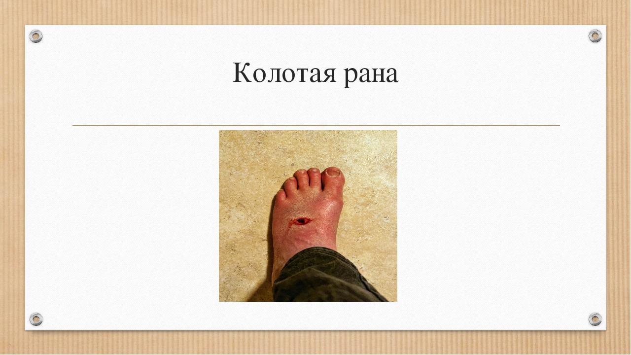 Колотая рана