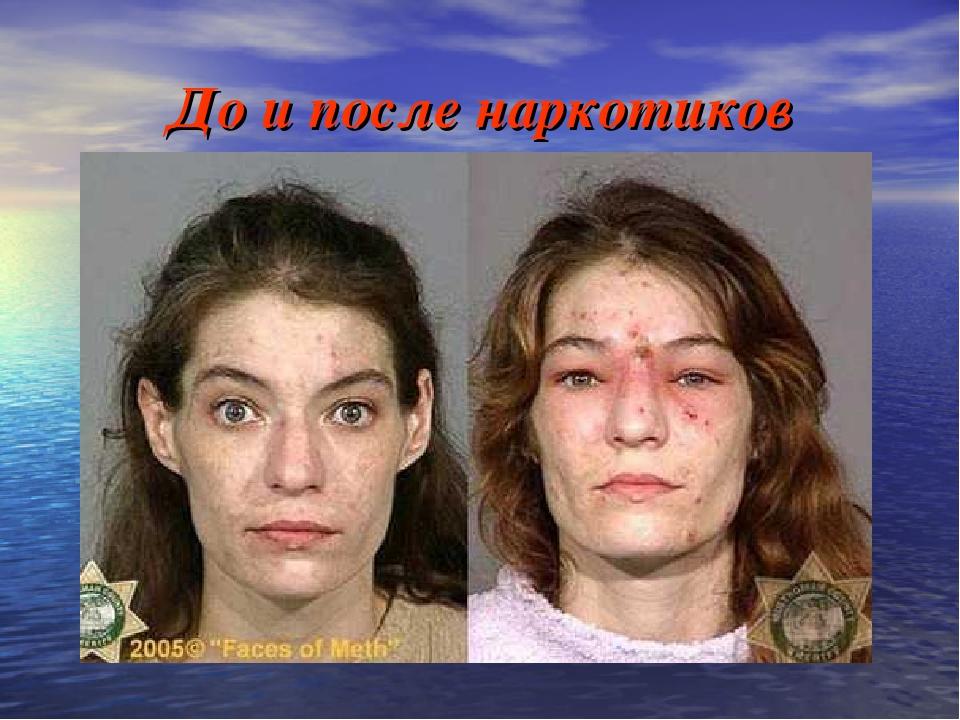 До и после наркотиков