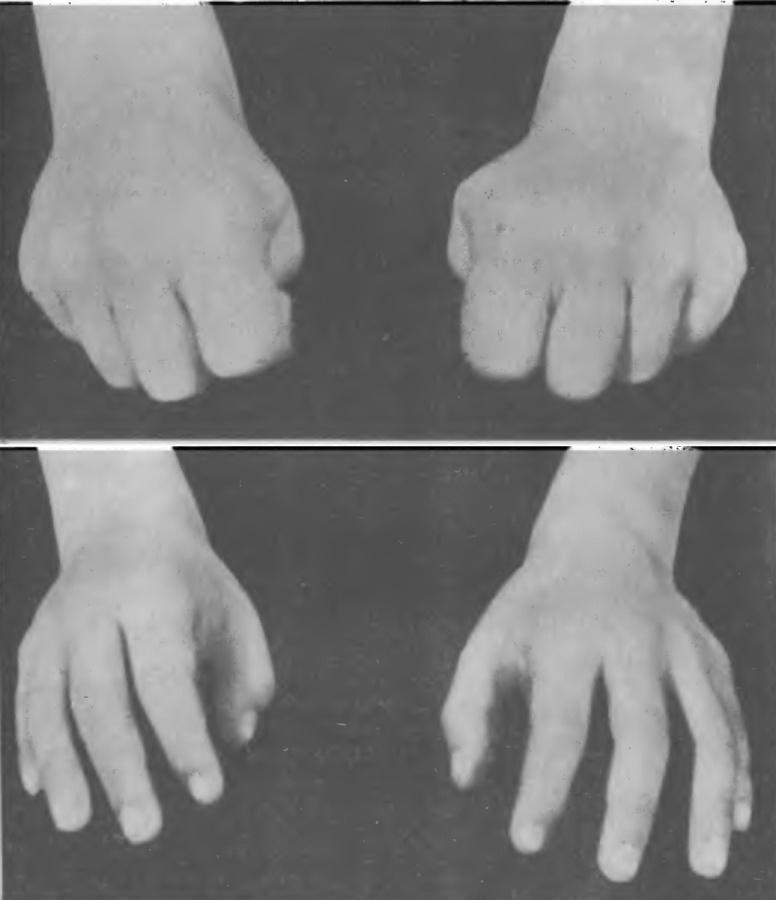 Как пальцам похудеть