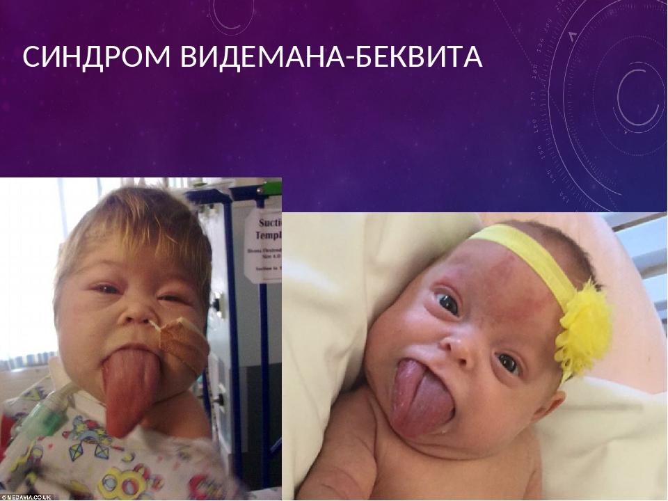 СИНДРОМ ВИДЕМАНА-БЕКВИТА