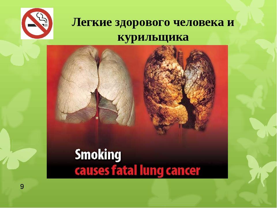* Легкие здорового человека и курильщика *