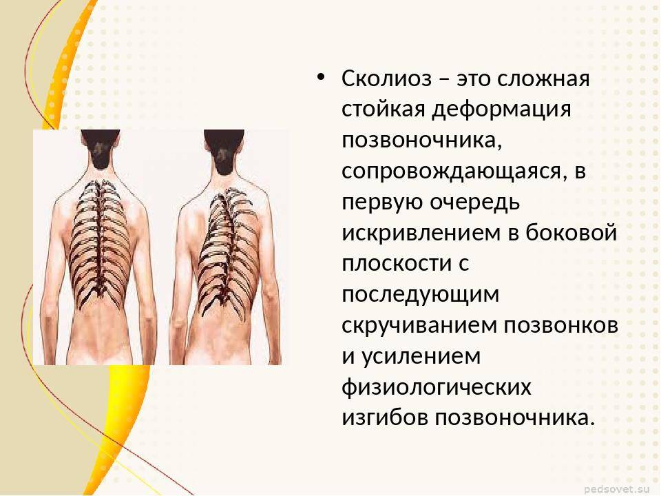 Сколиоз – это сложная стойкая деформация позвоночника, сопровождающаяся, в пе...