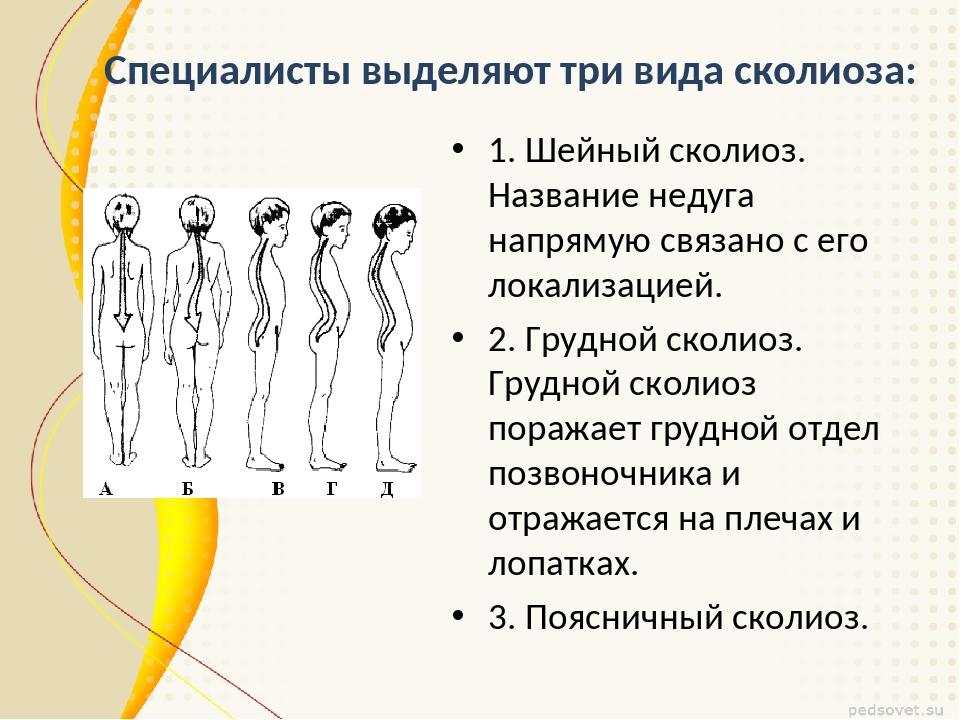 Специалисты выделяют три вида сколиоза: 1. Шейный сколиоз. Название недуга на...