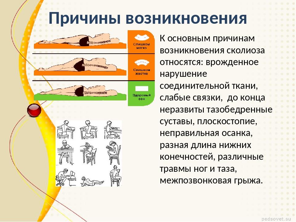 Причины возникновения К основным причинам возникновения сколиоза относятся: в...