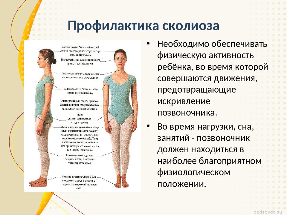 Профилактика сколиоза Необходимо обеспечивать физическую активность ребёнка,...
