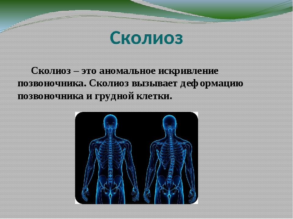 Сколиоз Сколиоз – это аномальное искривление позвоночника. Сколиоз вызывает д...