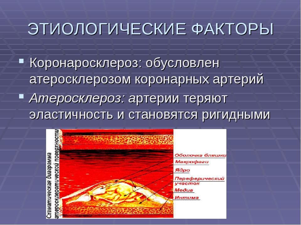ЭТИОЛОГИЧЕСКИЕ ФАКТОРЫ Коронаросклероз: обусловлен атеросклерозом коронарных...