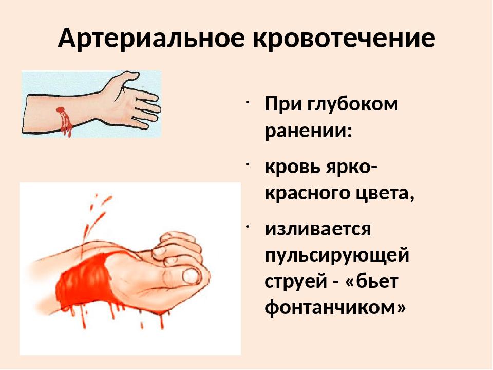 Артериальное кровотечений картинка