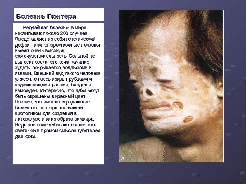 Болезнь Гюнтера  Редчайшая болезнь- в мире насчитывают около 200 случае...