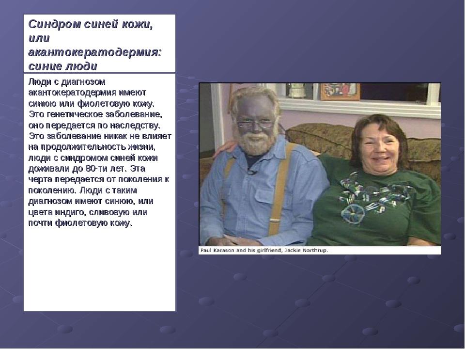 Синдром синей кожи, или акантокератодермия: синие люди Люди с диагнозом акант...