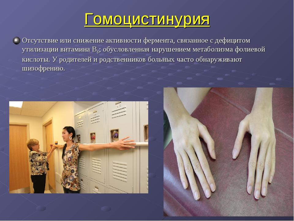 Гомоцистинурия Отсутствие или снижение активности фермента, связанное с дефиц...