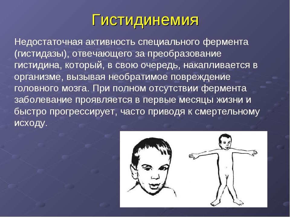 Гистидинемия Недостаточная активность специального фермента (гистидазы), отве...