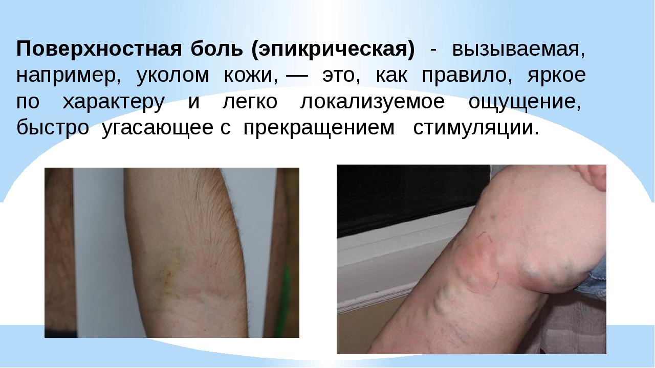 Поверхностная боль (эпикрическая) - вызываемая, например, уколом кожи, — это,...