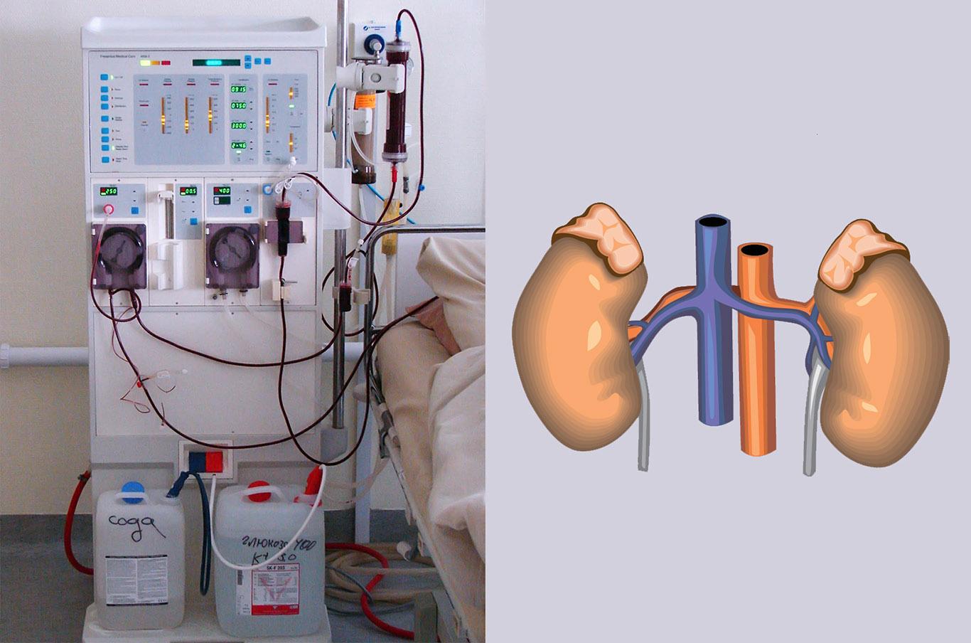 Аппарат гемодиализа в картинке