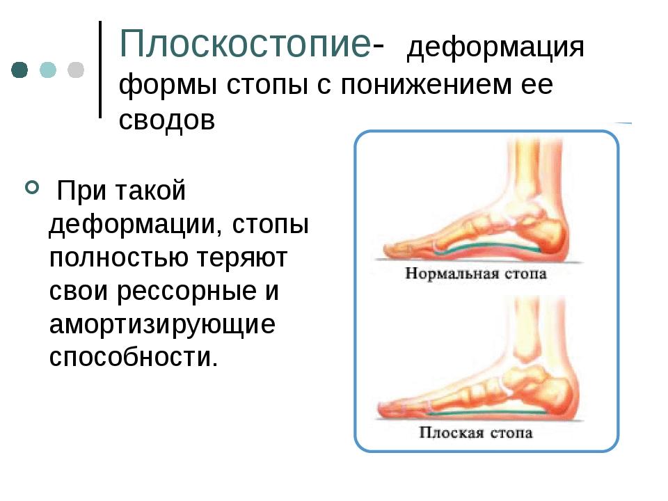Плоскостопие- деформация формы стопы с понижением ее сводов При такой деформа...