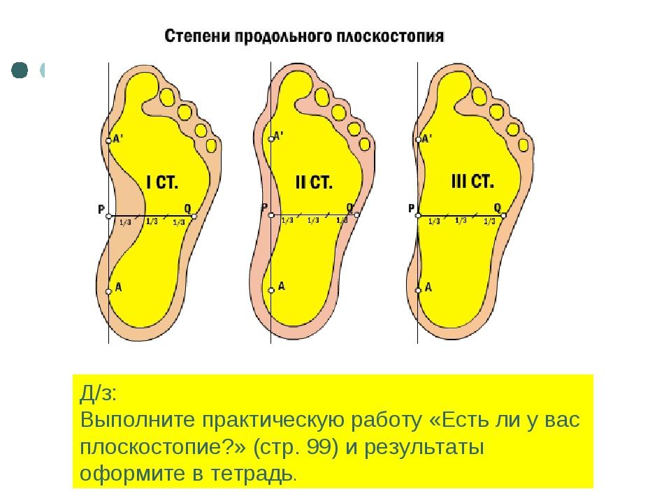 Д/з: Выполните практическую работу «Есть ли у вас плоскостопие?» (стр. 99) и...