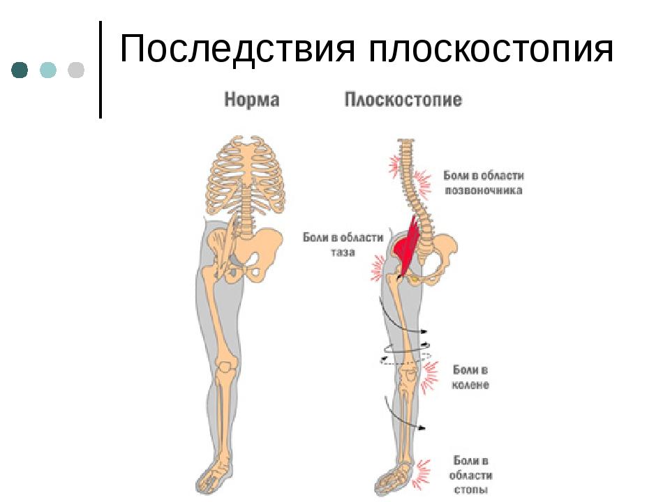 Последствия плоскостопия