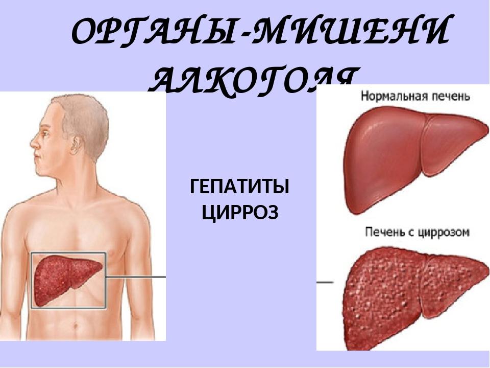 ОРГАНЫ-МИШЕНИ АЛКОГОЛЯ ГЕПАТИТЫ ЦИРРОЗ