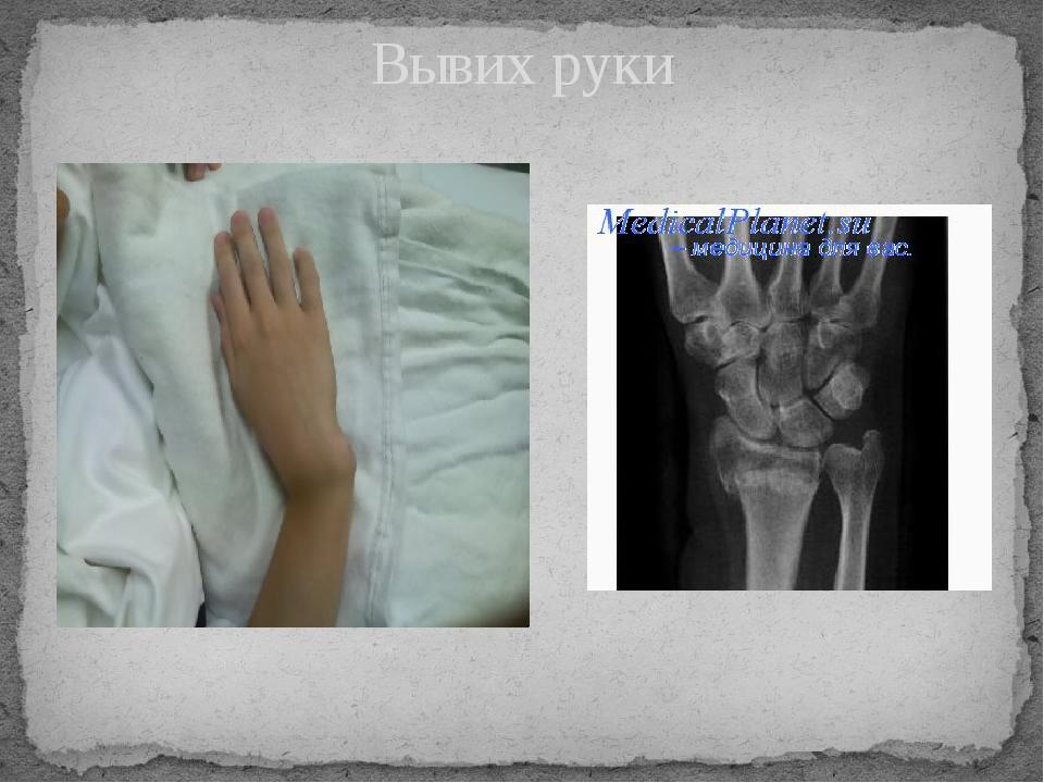 Лечение шейного и грудного остеохондроза медикаментозное