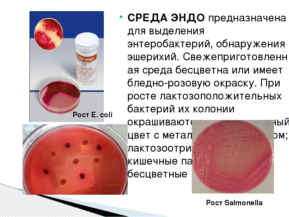 СРЕДА ЭНДОпредназначена для выделения энтеробактерий, обнаружения эшерихий....
