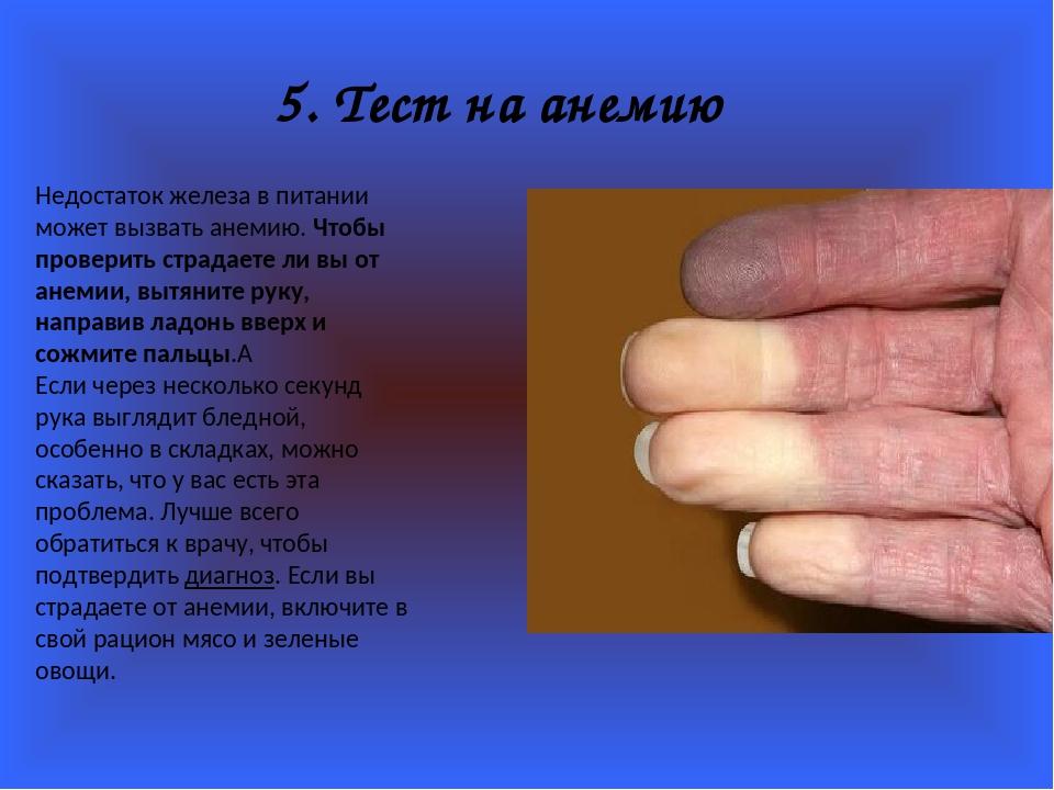 5. Тест на анемию Недостаток железа в питании может вызвать анемию. Чтобы про...