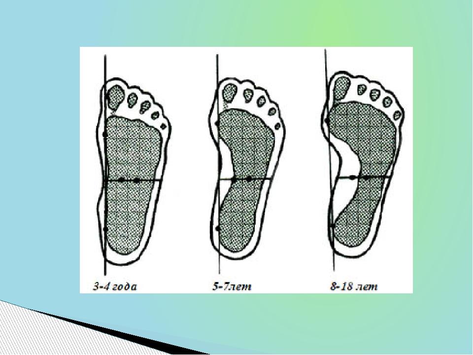 «Эволюция» развития стопы человека от детского возраста к совершеннолетию, к...