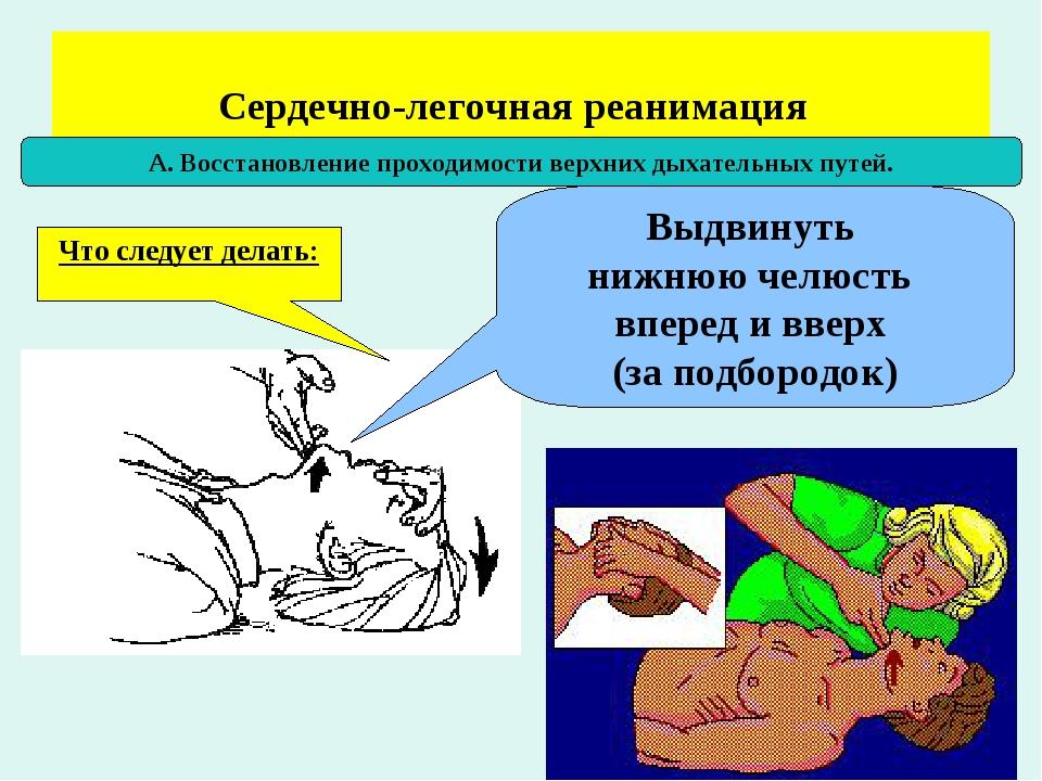 картинка на тему реанимация тнт