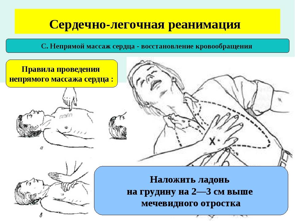 картинка на тему реанимация других городах украины