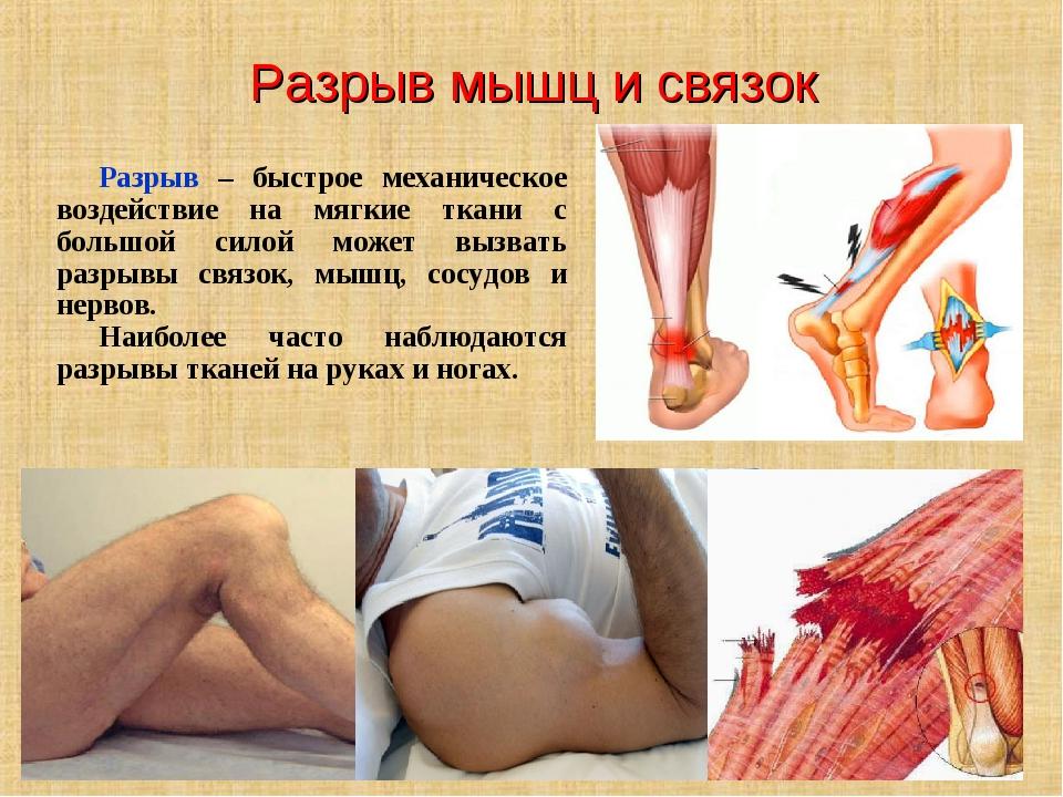 Разрыв мышц и связок Разрыв – быстрое механическое воздействие на мягкие ткан...