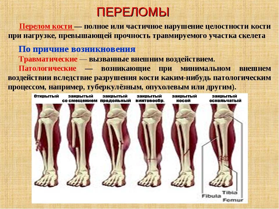 ПЕРЕЛОМЫ Перелом кости — полное или частичное нарушение целостности кости при...