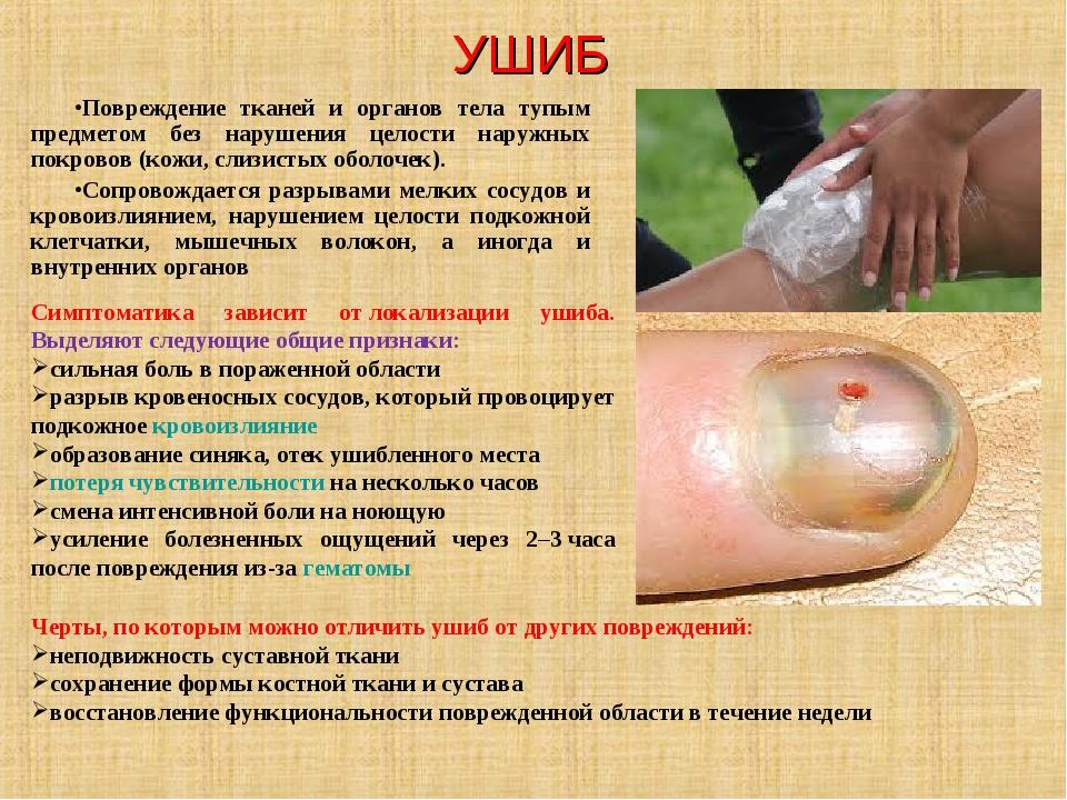 УШИБ Повреждение тканей и органов тела тупым предметом без нарушения целости...