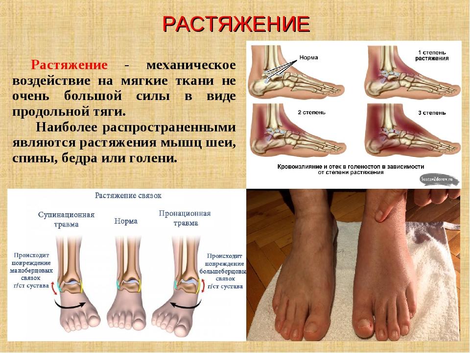 РАСТЯЖЕНИЕ Растяжение - механическое воздействие на мягкие ткани не очень бол...