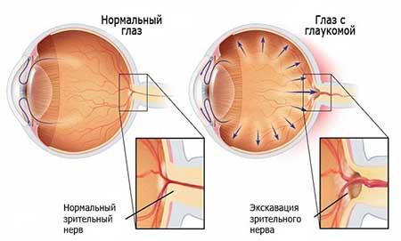 Реферат на тему глаукома 8361