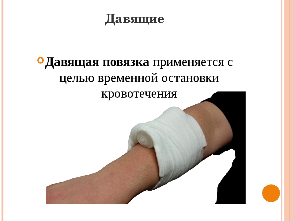 Давящие Давящая повязкаприменяется с целью временной остановки кровотечения